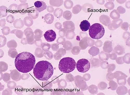 Все о раке крови лейкемия, лейкоз у взрослых и детей и его лечении