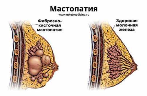 Мастопатия Что это такое Как же проявляется мастопатия