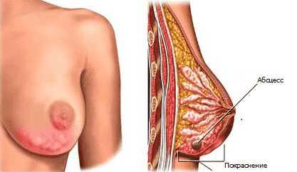 Лактостаз: описание, причины, симптомы,  лечение