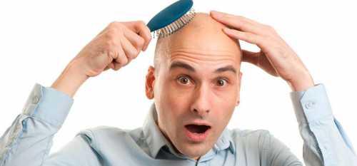 Кроме того, имеется еще и такое несоответствие как правило, при себорее поражается вся область головы, в то время как волосы выпадают преимущественно на ее макушке, а на боковых поверхностях головы они остаются совершенно не затронутыми
