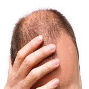 Алопеция выпадение волос, облысение