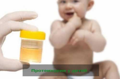 Норма белка в моче у детей