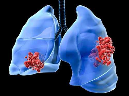 Как распознать рак желудка у человека
